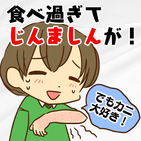 北海道旅行でカニを食べ過ぎてじんましんが出たけどカニが大好きな女性